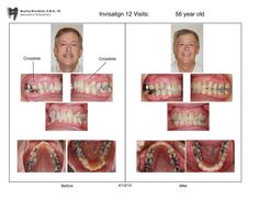 9 best open bites images on pinterest dental orthodontics and braces