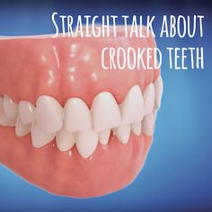 STRAIGHT TEETH LOOK NICE, but you'll be surprised how much they also affect overall health!  #invisalign #crookedteeth #adultorthodontics