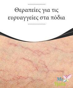 Θεραπείες για τις ευρυαγγείες στα πόδια Έχετε #ευρυαγγείες στα πόδια σας; Αναφερόμαστε σε εκείνα τα #μικρά #αιμοφόρα #αγγεία που εμφανίζονται στο δέρμα σας σαν #διακλαδώσεις με μοβ ή #κοκκινωπό χρώμα. #ΦΥΣΙΚΈΣ ΘΕΡΑΠΕΊΕΣ Body And Soul, Medicine, Health Fitness, Therapy, Tips, Beauty, Makeup, Make Up, Beauty Makeup