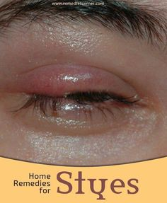 Home Remedies For Styes | Pin Remedies