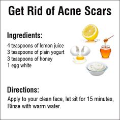 Struggling with acne? This tip should be of great help