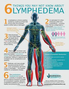 need to know about things need to know about lymphedema.things need to know about things need to know about lymphedema. Lymphatic System: How to Make It Strong & Effective - Dr. Axe How to Unleash Lymphatic Toxins Through Rebounding Lymphatic system . Acupuncture, Edema Causes, Lymphatic Drainage Massage, Lymphatic System, Massage Therapy, Physical Therapy, Nutrition, Cure, Breast Cancer