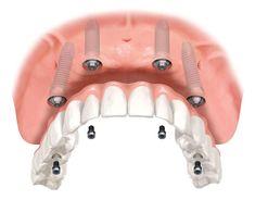 """O  sistema de implante """"Tudo em 4″ também é conhecido como """"Dentes em um dia"""", essa é uma das opções de reparação mais avançadas disponíveis hoje."""
