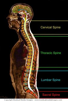 , A Color MRI of the Spine which shows the different section of the Spine. A novel, advanced visual tool to see and understand Anatomy, Disease, and Sur. Human Skeleton Anatomy, Human Anatomy, Muscle Anatomy, Body Anatomy, Human Spine, Human Body, Chiropractic Therapy, Advanced Chiropractic, Lucas 1