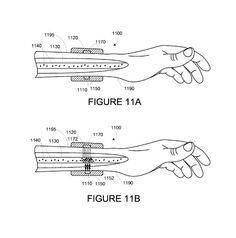 O Google patenteou um aparelho que pode atacar o câncer