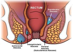 An anal fistula is a small channel that develops between the end of the bowel, known as the anal canal, and the skin near the anus..... http://www.natural-health-news.com/anal-fistula-causes-symptoms-diagnoses-and-treatment/