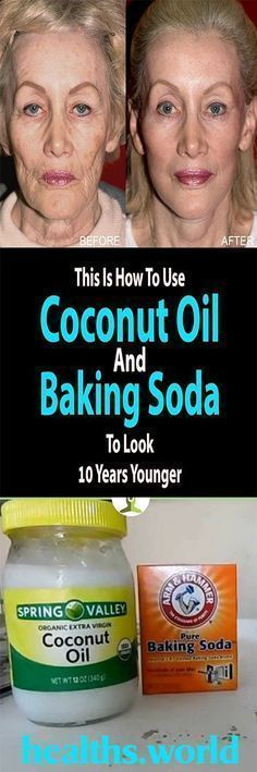 Coconut Oil and Baking Soda Face Mask to Look 10 Years Younger Natural Treatments, Skin Treatments, Natural Remedies, Baking Soda Face, Baking With Coconut Oil, Health World, Benefits Of Coconut Oil, Tips Belleza, Belleza Natural