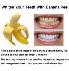 Whiten Your Teeth with Banana Peel. Bananas are a commom fruit in our daily life. But do you know that they are also excellent and effective to use to remove stains on your teeth and whiten the teeth? #Skinwhiteningproducts