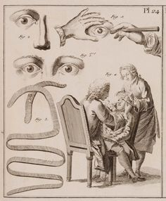 Surgery Plate from the Octavo edition of Diderot's Encyclopédie, 1770s.