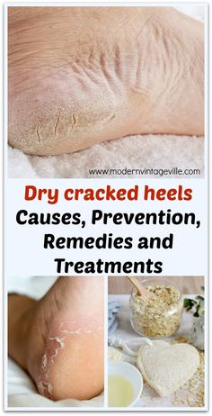 Ultimate guide for dry cracked heels. Causes of cracked heels, ways to prevent them, home remedies and treatments. Learn about very potent acid peel using 80 lactic acid. Dry Heel Remedies, Cracked Feet Remedies, Cracked Heels Treatment, Dry Cracked Hands, Cracked Skin, Dry Hands Remedy, Dry Heels, Feet Care, Health Fitness