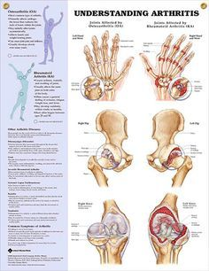 """Understanding Arthritis...increased awareness of your injury/condition will help you begin to decrease your pain...also check out the book """"Arrhritis Relief at your Fingertips"""" by Michael Reed Gach..."""