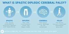 Spastic diplegia (or diparesis) is a form of cerebral palsy characterized by spasticity in the legs. Types Of Cerebral Palsy, Cerebral Palsy Awareness, Cerebral Palsy Quotes, Leg Spasms, Brain Injury, Occupational Therapy, Disorders
