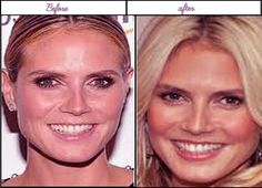 The Real Heidi Klum Appears immediately after and Ahead of acquiring plastic surgery - A talented and very influential actress of her generation has decided to have a plastic surgery nose job. We can see from the image that she has turned pointed nose from not-so-pointed nose image in the left. Heidi Klum decided to mix things up a bit with her fashion' improve her make-over... #HeidiKlumAfterBeforeSurgery, #HeidiKlumAfterPlasticSurgery, #HeidiKlumBeforePlasticSurgery h Celebrity Plastic Surgery, Prettiest Actresses, After Surgery, Best Sites, Heidi Klum, Celebs, Celebrities, Hollywood Stars, Cool Photos