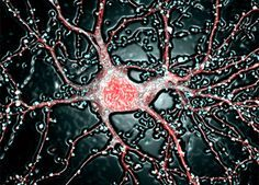 A neuron from the hippocampus at 63-times magnification. There are approximately 100 billion neurons in the human brain. Image by Dr. Carlo Sala, CNR Institute of Neuroscience.