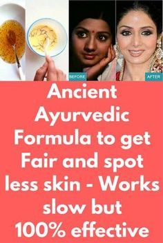 Ancient Ayurvedic Formula to get Fair and spot less skin - Works slow but effective The formula works slowly but gives permanent results after 2 to 3 months of use. Vaseline, Skin Care Regimen, Skin Care Tips, Ageless Beauty, Beauty Skin, Skin Care Remedies, Natural Remedies, Beauty Secrets, Beauty Tips