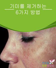 기미를 제거하는 6가지 방법  잡티와 기미로 알려진 갈색 반점은 주로 뺨, 이마, 윗입술, 목에 나타나는 피부의 색소 침착이다. 이런 잡티는 대부분 보기가 흉하며, 종종 임신, 피임약 복용, 호르몬 변화, 폐경기, 혹은 과도한 자외선 노출 등으로 인해 유발된다. Freckle Remover, Beauty Skin, Hair Beauty, Zara Man, Freckles, Strap Sandals, Different Colors, Makeup Tips, Beauty Hacks