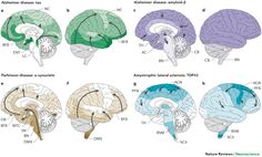 Image result for neuro histopathology prion