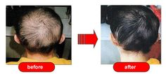 Hair Loss Breakthrough http://hairloss.secretmoneyringblog.com/