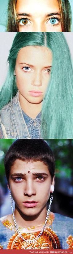 Heterochromia is so cool
