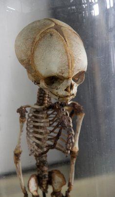 Foetal skeleton: Congdon's Anatomical Museum, Bangkok. Photograph by Michelle Enemark.