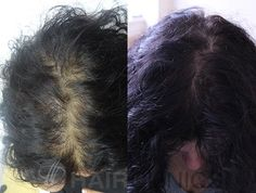 Direct (ADVANCED Fue) hair transplantation on women | Qspa Wellness