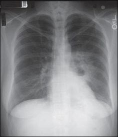 A 37-year-old woman presented with a productive cough and chills, which began four weeks earlier. She was given azithromycin (Zithromax), but her symptoms did not improve. Instead, she experienced increasing productive cough with dark, foul-smelling sputum, and midsternal and left back pain that worsened when coughing. She did not have hemoptysis.  Most likely diagnosis? aspergilloma, bronchiectasis, empyema, abscess - (click for more images)