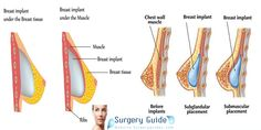 breast augmentation surgery recovery time