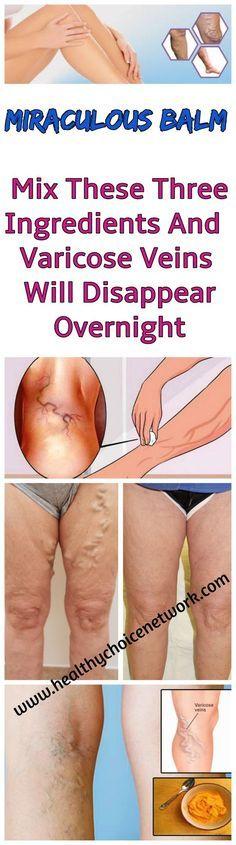 #Balm #Varicose #veins #cure #remedy #health #legs