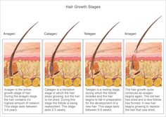 How hair grows. Only active hair follicles will respond to laser hair removal. Here at The Medical Spa we use the Alma Soprano for most people. After reading this nicely written article, visit our website: www.TheMedicalSpa.com