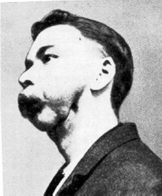Phossy jaw, known technically as phosphorus necrosis of the jaw, is a necrosis of the bone in people who were exposed to phosphorous vapor. This occupational disease was commonly seen in workers in. Phossy Jaw, Fresco, White Phosphorus, Radiation Dose, Radium Girls, Tooth Pain, Tooth Ache, Dark Stories, Medical History