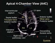 Resultado de imagen para rotation angle from 4 chamber to 2 chamber view in echocardiography Cardiac Sonography, Ultrasound Sonography, Pediatric Radiology, Cardiothoracic Surgery, Tricuspid Valve, Mitral Valve, Cardiac Nursing, Ultrasound Pictures, Medical Pictures