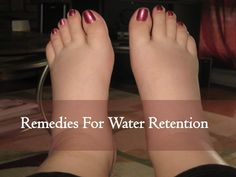 """Remedies For Water Retention: Do you often find yourself complaining, """"I feel really bloated"""" or """"My feet are so swollen, I can't put my shoes on."""