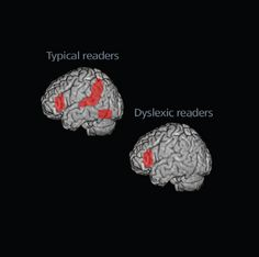 Brain-imaging studies show that, while reading, most people activate areas in the left temporal cortex and other regions of the left hemisphere. Dyslexic readers, on the other hand, underactivate these regions. (Each image shows the left side of the brain.)   Credit: Twomey/Eden, Georgetown University.  http://www.sfn.org/skins/main/pdf/brss/BRSS_Dyslexia.pdf
