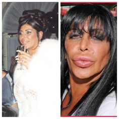 Big Ang ~Mob Wives- plastic surgery or sex change. I love her, but DAYUM! Botched Plastic Surgery, Bad Plastic Surgeries, Plastic Surgery Gone Wrong, Celebrity Plastic Surgery, Celebrities Before And After, Celebrities Then And Now, Leiden, Big Ang Mob Wives, People