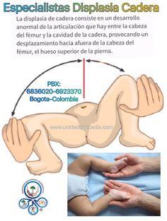 Consulta en Displasia de Cadera Unidad Especializada en Ortopedia y Traumatologia en Bogota - Colombia PBX: 6923370 www.unidadortopedia.com