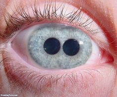 Pupula duplex — commonly called double pupil — is a rare medical condition, in which one's eye or eyes has two pupils.
