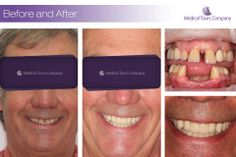 Implants and crowns Teeth In A Day, Clinic, Dental Crowns, Medical, Names, Tours, Dental Implants, Medical Doctor, Medicine