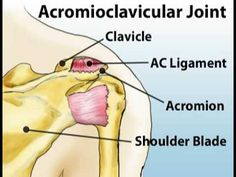 Understanding shoulder pain
