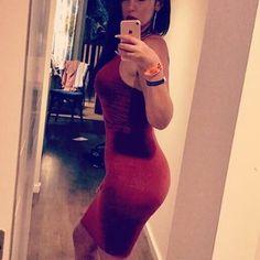 """184 Beğenme, 6 Yorum - Instagram'da Caner KAÇMAZ (@dr.canerkacmaz): """"Liposuction sonrasında popoya 1.200 cc yağ enjeksiyonu (BBL)ve 355 cc meme implantı uyguladıktan 1…"""""""