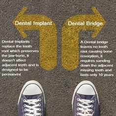Dental Implant vs. Dental Bridge: Dental Implants replace the tooth root which preserves the jaw bone, it doesn't affect adjacent teeth and is designed to be permanent A Dental bridge leaves no tooth root causing bone resorption, it requires sanding down the adjacent missing teeth and lasts only 10 years