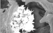 Nanoparticelle e nanopatologie