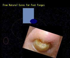 Free natural cures for foot fungus - Nail Fungus Remedy. You have nothing to lose! Visit Site Now