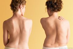 With regular practice, you can ease the pain of a crooked back and turn it into a powerful teacher. By Elise Browning Miller                ...