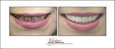 Tired of hiding your smile from others?  But can't afford expensive works? Ask us about Porcelain Veneer, Teeth whitening, Dental Bonding, Snap on Smiles, Composite Veneer.  Vogue Smiles Melbourne can help you improve your smiles.  http://drzenaidycastro.com.au/, http://melbournecosmeticdentistry.com.au/, http://dentist-in-melbourne.com.au/, https://www.youtube.com/channel/UC0dLOqSdLKJqrrzuP3axNxA, https://heartandsoulwhisperer.com.au/,#CosmeticDentistMelbourne