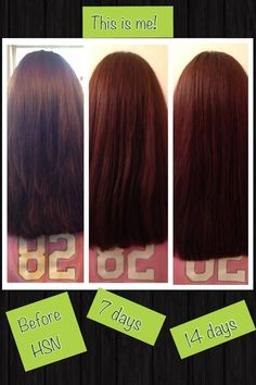 14 day results from using Hair Skin & Nails. #itworks