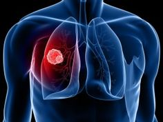 Seven Signs You Might Have Lung Cancer