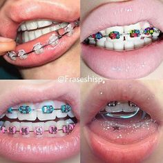 Lots Of Young People Wear Braces These Days It S No Big Deal So
