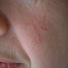 This condition usually affects fair-skinned people. The capillaries beneath the skin are easy to see and the condition occurs due to the stretching of the tiniest veins in the face.The walls of t...