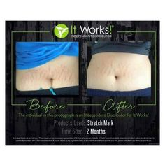 Need a stretch mark cream that really works? check out these results from Stretch Mark by It Works! Order at www.careycrossley.com #stretchmark #skincare #moisturize #scar #postpardom #pregnancy