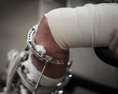 Military Accidents That Are Commonly Claimed For
